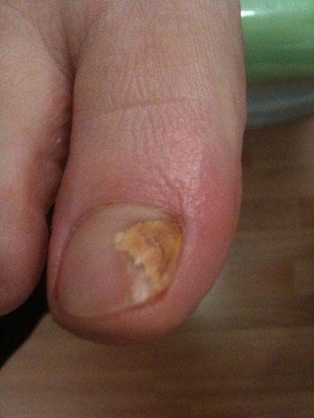 mycose ongle main symptomes